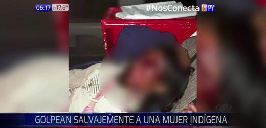 Mujer fue golpeada salvajemente por su pareja